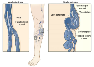 durere venelor verticale boala varicoasa tratament naturist